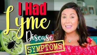 Lyme Disease Rash Fort Meade Maryland