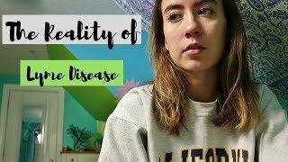 Cure For Lyme Disease Massachusetts Massachusetts