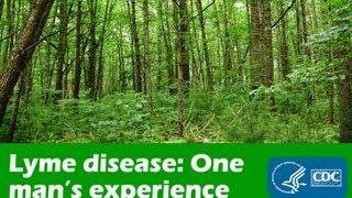 Lyme Disease Symptoms Boston Massachusetts