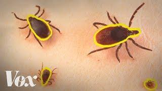 Lyme Disease Ventura California