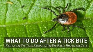 Lyme Diseases San Jose California