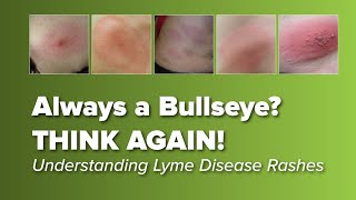 Lyme Disease Symptoms Salem Oregon