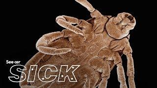 Lyme Disease Test West Virginia