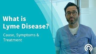 Lyme Disease Symptoms Burlington Vermont