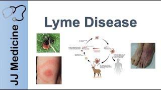 Lyme Disease Cure Naperville Illinois