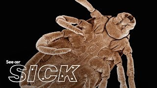 Chronic Lyme Disease Myrtle Beach South Carolina