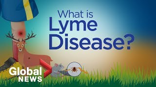 Lyme Disease Hospital Jersey City New Jersey