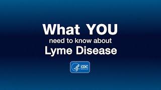 Lyme Disease Specialist Toledo Ohio