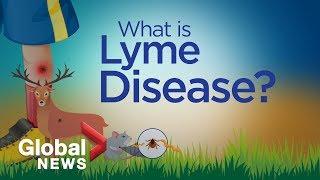 Treatment For Lyme Disease Smyma Delaware
